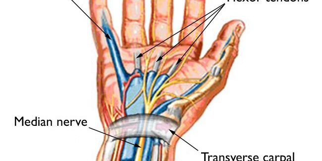 Carpal Tunnel Syndrome - Causes Treatments & Symptoms